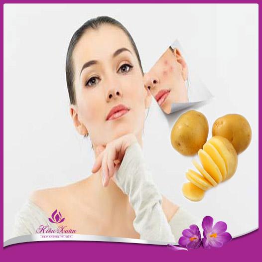 trị vết thâm sau mụn bằng khoai tây