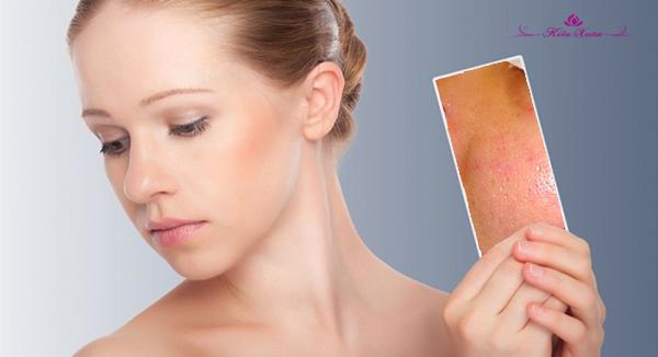 Cách khắc phục da dầu, nổi mụn và lỗ chân lông to nhanh và hiệu quả
